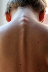 Profesjonalna rehabilitacja kręgosłupa